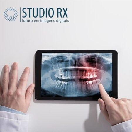 studio/rx-futuro-imagens-digitais-odontologicas