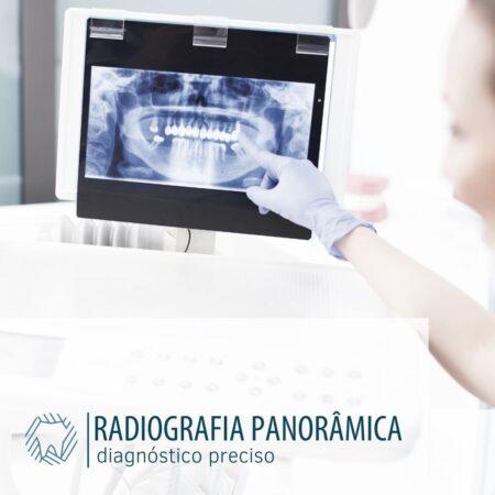 radiografia-panoramica-diagnosticopreciso-blog