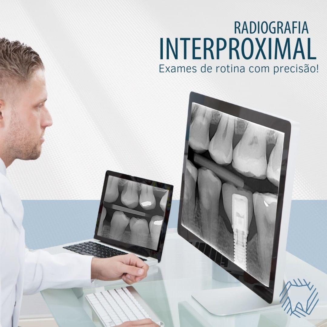radiografia-interproximal-exames-precisao