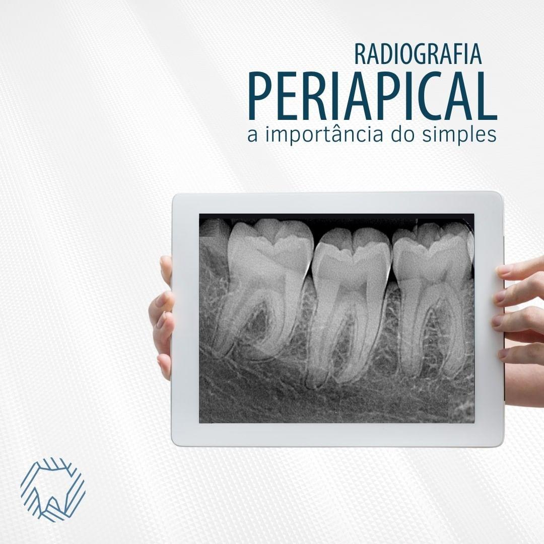 radiografia-periapical-importancia-simples