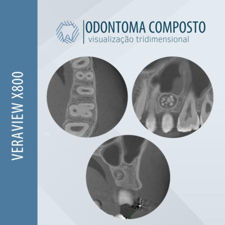odontoma-composto-visualizacao-3d-veraview-x800